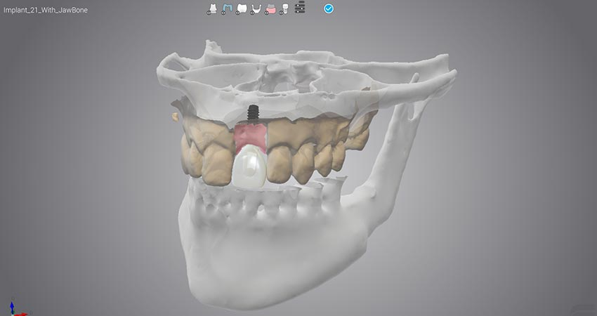 Resources - Dedicated to Dental Wings software user - Dental