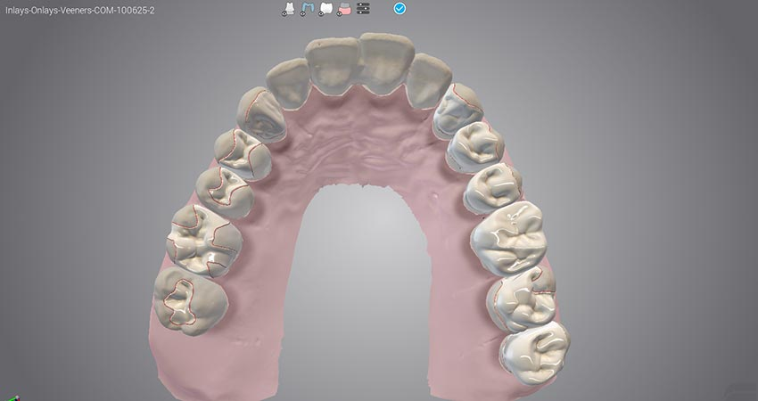 Dental Wings - Digital Dentistry Solutions for Clinics and Labs