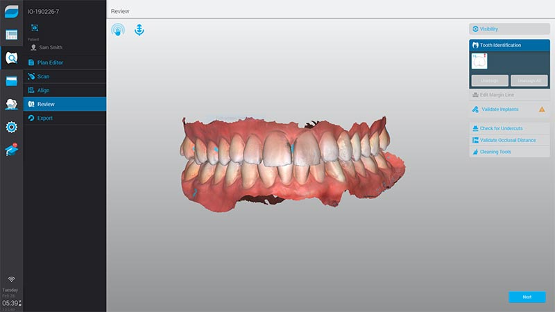 Intraoral Scanner Virtuo Vivo™ accuracy in real color